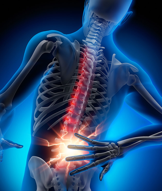 Lower-Back-Pain-Image-3
