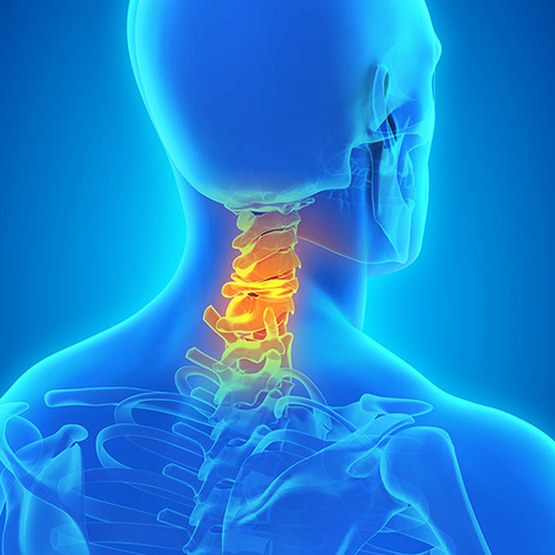 neck-pain-image