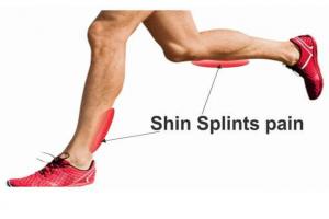 Painful-Shins-Shin-splints