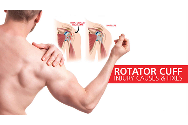 rotator-cuff-injury